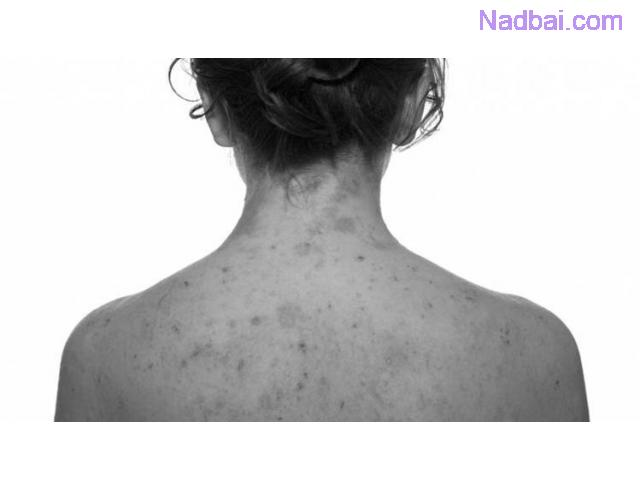Eczema Treatment in Delhi
