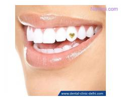 Teeth Bleaching Dentist in Delhi