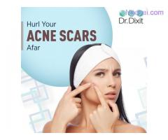 Best Acne Scar Reduction In Bangalore