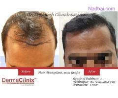 Hair Transplantation At 0% Risk Free at Best Hair Transplant Clinic in Chennai