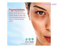 Best Pigmentation Treatment in Bangalore