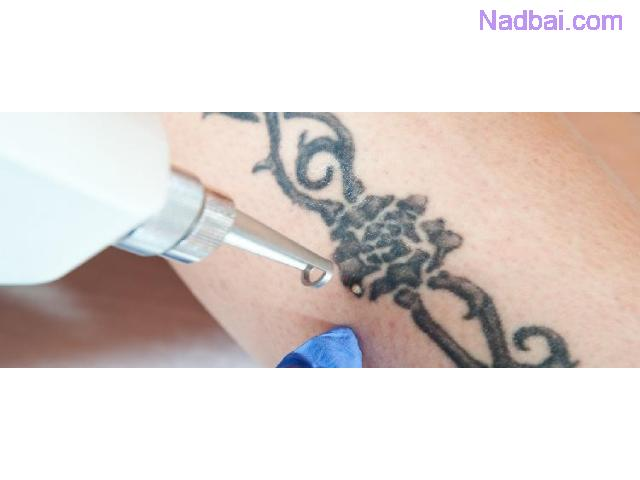 Tattoo Removal in Chandigarh