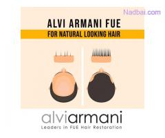 High Density Hair Transplant Clinic in New Delhi - Alvi Armani