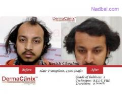 10 Things to Keep in Mind While You go For Hair Transplantation