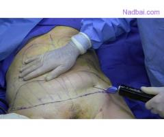 Best Liposuction Surgeon Clinic in Delhi