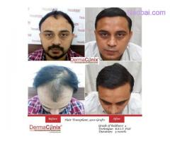 What is the Cost of Hair Transplant in India?