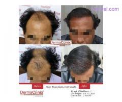 Is Hair Transplantation a Better Choice?