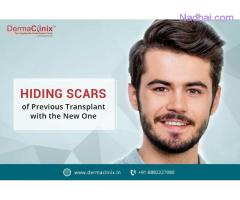 How Hair Transplant is the Best Course of Treatment for Baldness