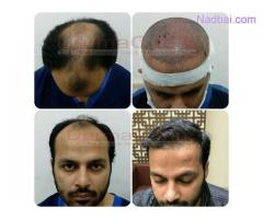 Factors That Contribute to Hair Transplant Costs
