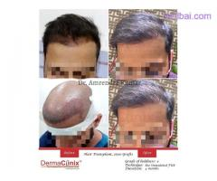 Do Not Loose Your Hair to Your Comb - Get Hair Transplantation Done Today