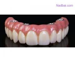 Denture Implants in Delhi
