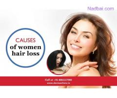 How to Deal with Female Pattern Baldness Issue?