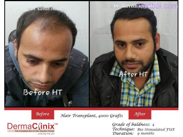 How Reliable Can be Hair Transplantation For You