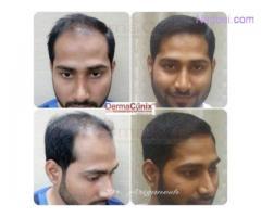 Hair Transplant Clinic in Chennai