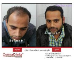 Looking for a Hair Transplant Center? Delhi will Prove to Be the Best Choice