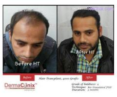 All About the Hair Transplant in Dermatology