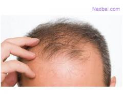 Say Good Bye to Hair Loss With the Hair Loss Treatments!