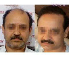 Latest Trends in Hair Restoration