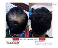 Reason Why Hair Transplantation is Becoming a Popular Choice