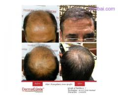 Get Your Confidence Back with Hair Transplant Less Hair on Scalp?