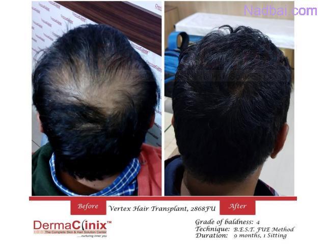 Get Affordable Hair Transplant Surgery in Delhi