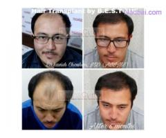 What are the Effects of Hair Restoration Surgery for Different People?