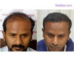 Get Best Hair fall Treatment from Dermaclinix