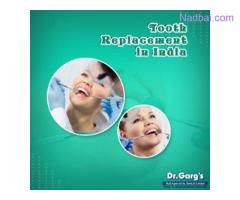 Tooth Replacement in India