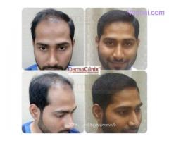 Things Which You Should Not Do After Hair Transplantation Treatment