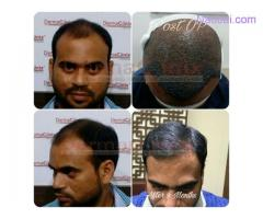 What to Consider for Successful Results with Hair TransplantSurgery?