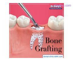 Bone Grafting in Delhi