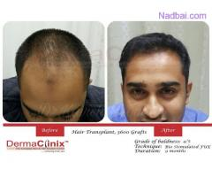 Wake Up With A New Personality With The Best Hair Transplant in Delhi
