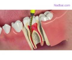 Restore Your Million-dollar Smile with the Dental Implants in South Delhi