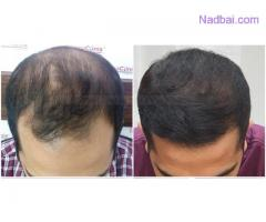 Understanding More About Hair Transplants Other Than Scalp