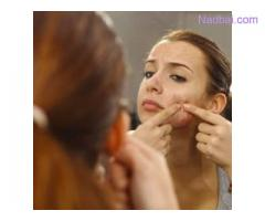 Acne Treatment in Gurgaon | Dr. Neha Sharma Estique Clinic