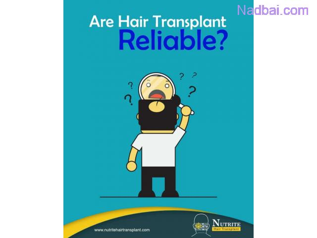 Are Hair Transplant Reliable?