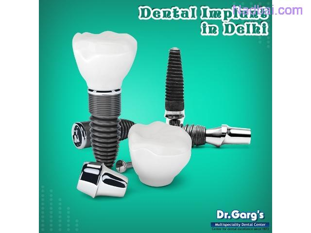 Dental Implant Specialist in Delhi (India)