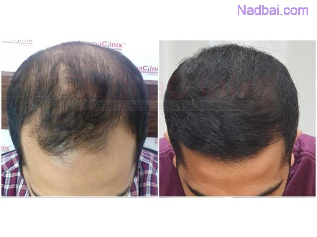 Treatment Options in Advanced Grade Baldness