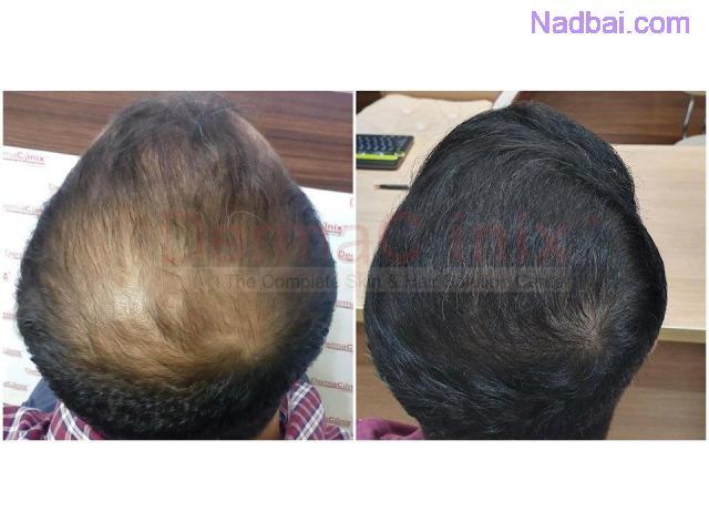Types of Hair Transplantation