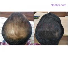 Types of Hair Transplantation
