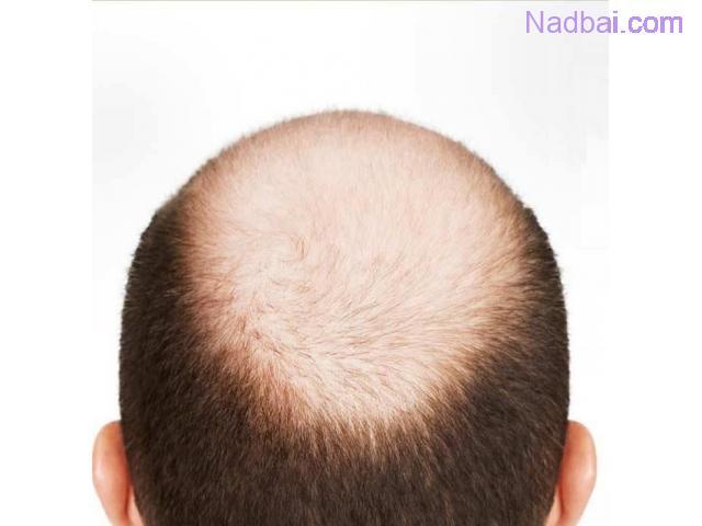 Best Baldness Treatment in Delhi