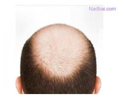 Best Baldness Treatment in Delhi