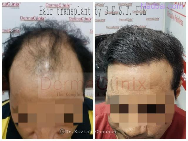 Hair Transplant Center in Delhi