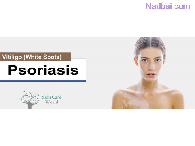 Psoriasis Treatment in Gurgaon