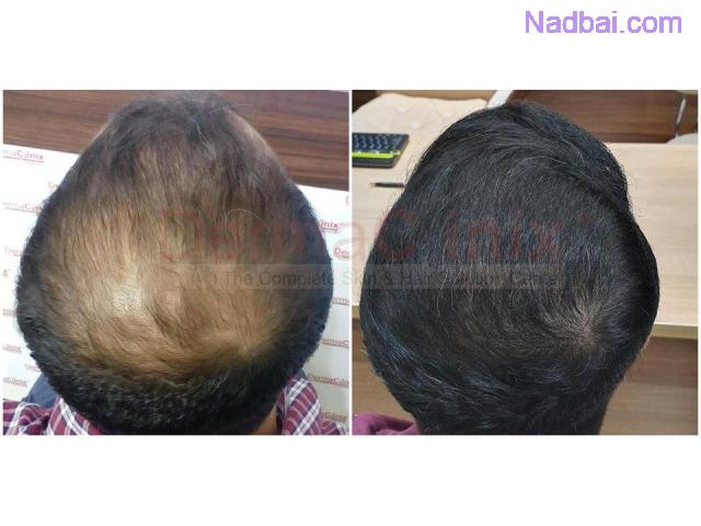 Best Hair Transplant Clinic in Delhi