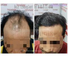 Hair Transplant in Delhi Best Option For Your Hair Loss