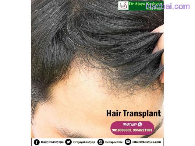 Hair transplantation Clinic in South Delhi