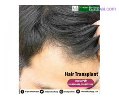 Hair transplantation Clinic in South Delhi
