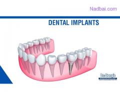 The Lowest Dental Implant Price in Delhi (India)