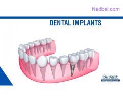 The Lowest Dental Implant Price in Delhi (India)